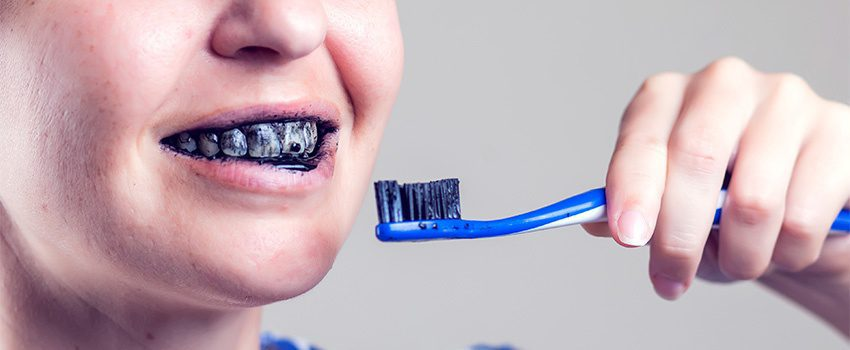 SDA Quick Guide on Charcoal Teeth Whitening
