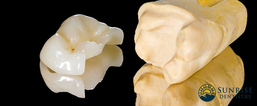 Dental Inlays and Onlays - Everything You Need To Know