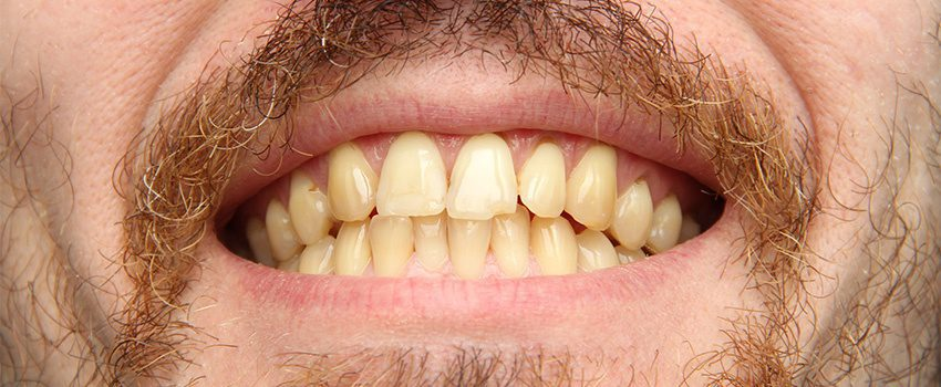 SDDrug-Induced Teeth Discoloration Causes and Treatment Options