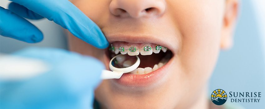How to Take Care of Braces - 8 Habits to Break