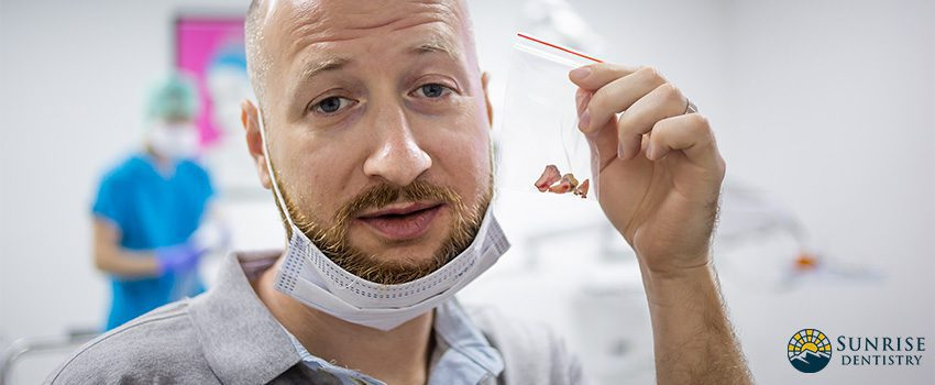 Wisdom Tooth Extraction - What to Expect Before, During, and After the Procedure