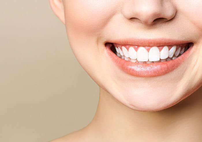 SD Woman Naturally Smiling Showing White Set of Teeth