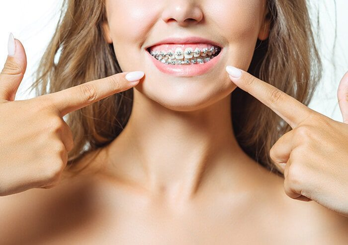 SD Woman Smiling and Pointing at her braces