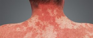 Are Your Skin Problems Due to Alcohol Misuse